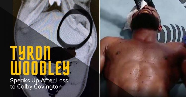 Tyron Woodley Shows X-Ray of Ribs After Loss to Covington